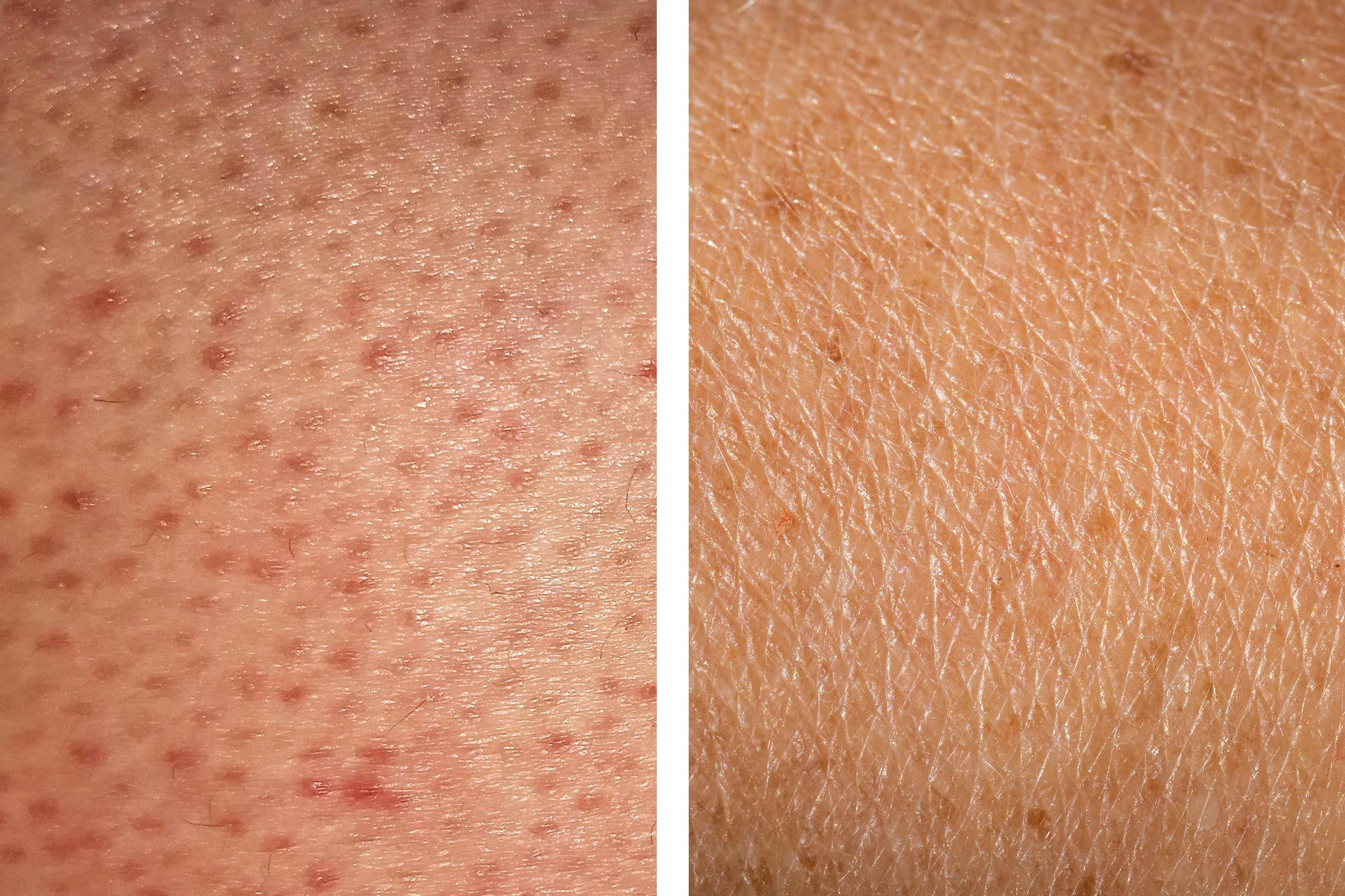 Can You Get Acne On Your Legs How To Get Rid Of Strawberry Legs 5 Treatments That Work Strawberry Legs Ingrown Leg Hair Exfoliate Legs
