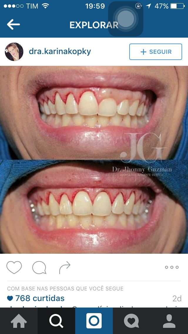 791ee9d271684 Crown Lengthening would love to see this done. Saúde BucalClínica Dental SorrisoCurtidasAssistente ...