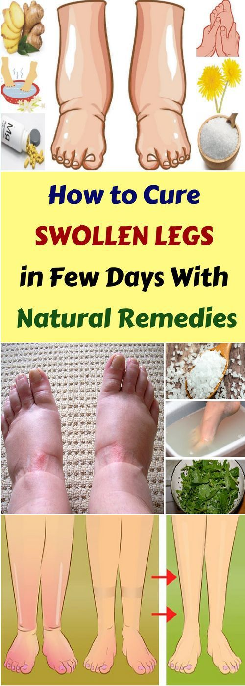 How To Cure Swollen Legs In Few Days & Natural Remedy!!!  #lifestyle  #fitness