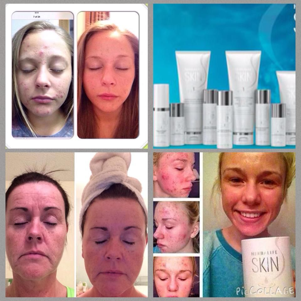 Care herbal life product skin - New Skin Care Products From Herbalife Pictures Show Real Amazing Results Contact Me Here