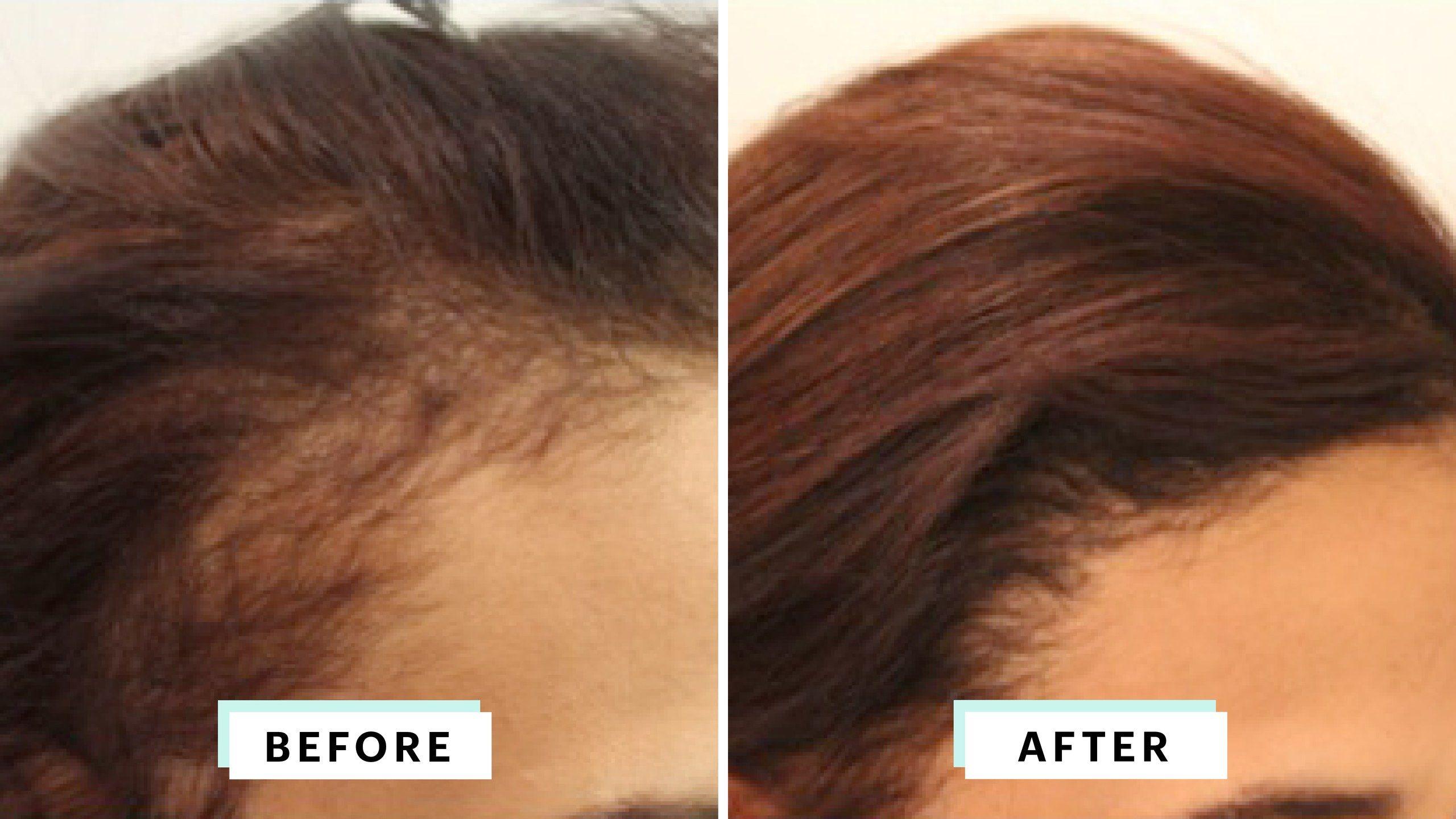 Surgical Hair Restoration Hair Transplant Women Hair Transplant Surgery Hair Loss Remedies