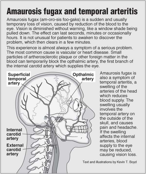 Information Graphic About Amaurosis Fugax Vision Problems And