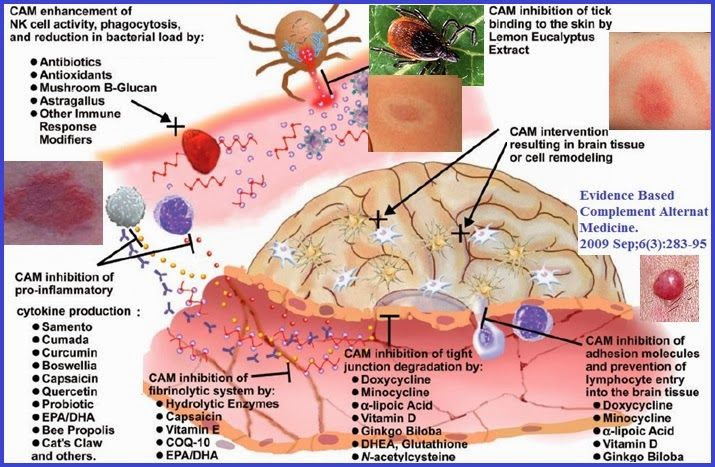 Lyme disease treatment and symptom relief options at different