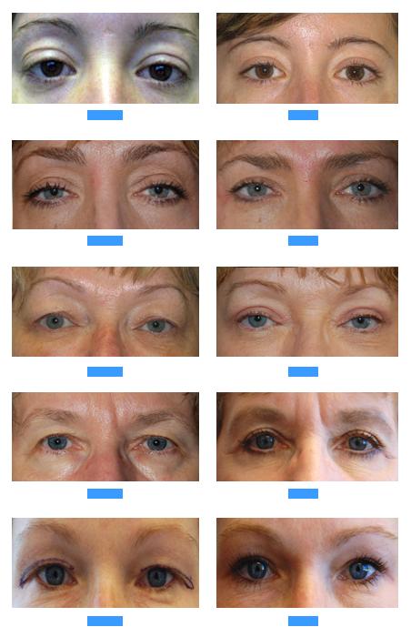 Lower Eyelid Surgery Augusta Evans Georgia, Belpharoplasty