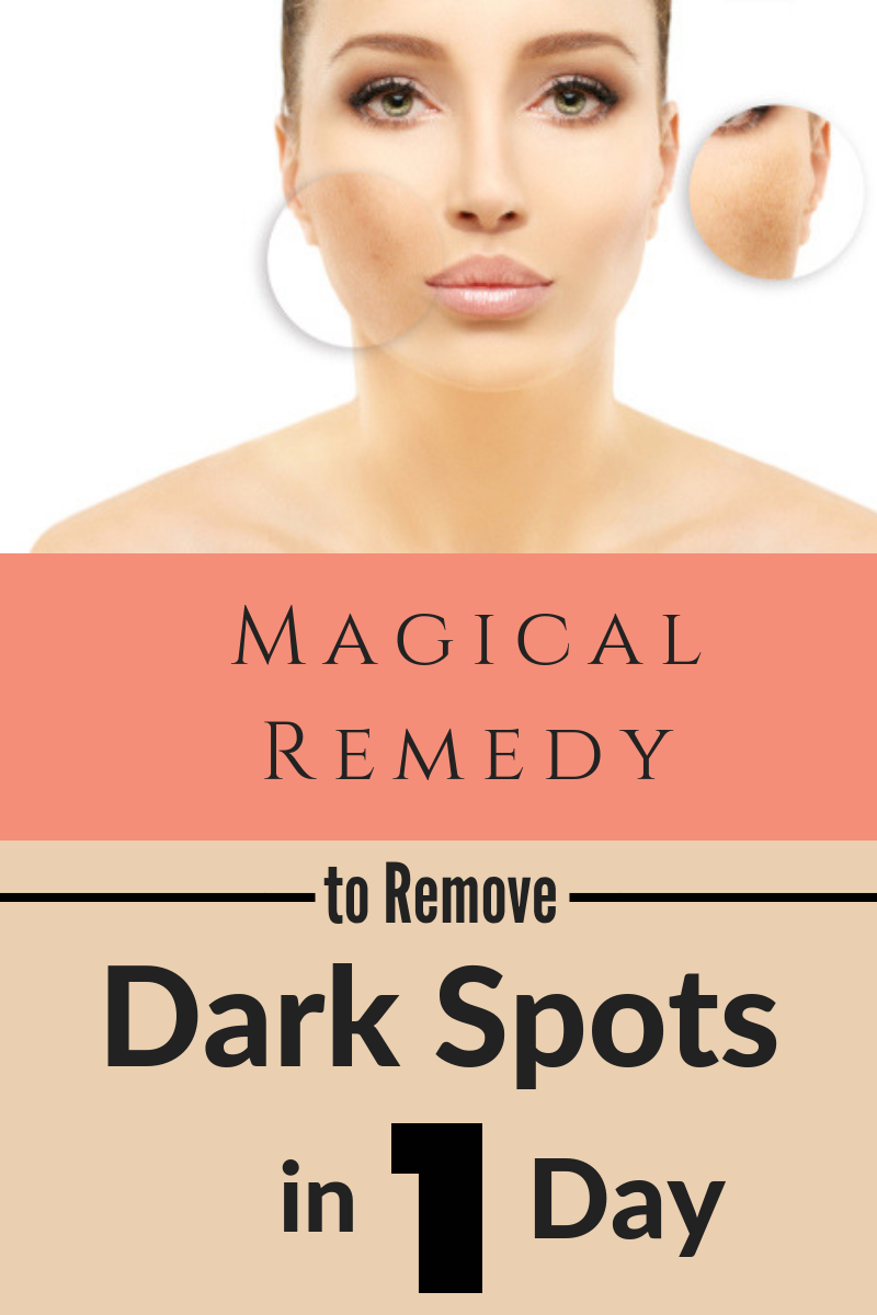 Magical Remedy To Remove Dark Spots Dark Spots On Skin Remove Dark Spots Organic Skin Care Routine