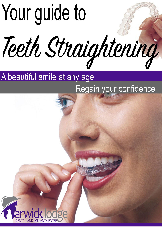 Teeth Straightening Guide in 2020 Teeth straightening