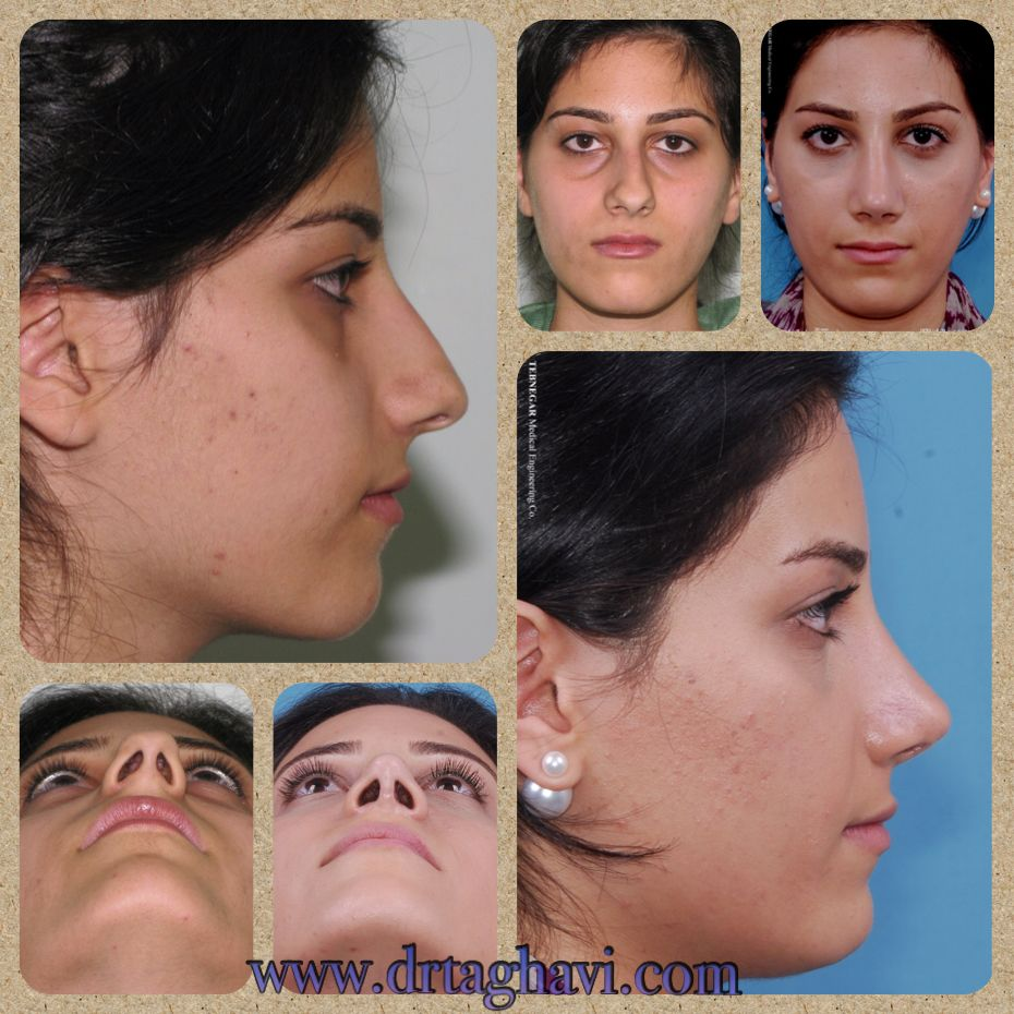 Deviated nose with boxy tip Nose job, Nose