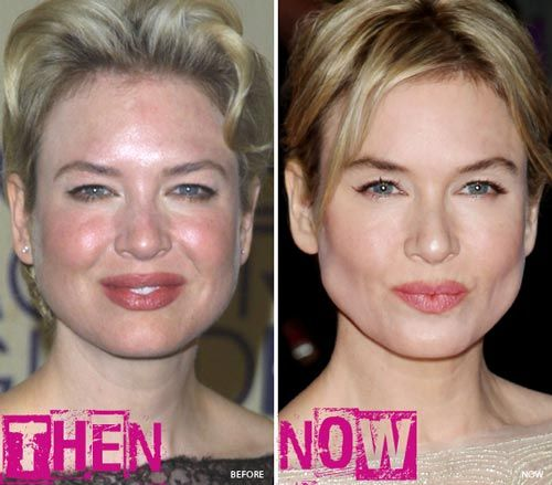 Renee Zellweger Plastic Surgery Before  After