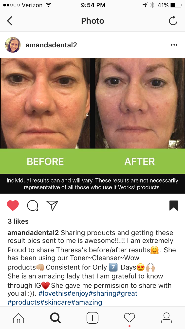 This Is My Before And After Pic After Using The It Works Product Wow Botox In A Packet Amazing Product A Must Try It Works Products It Works I Am Awesome