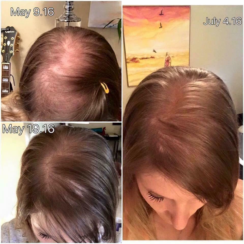 alopécie traitement naturel