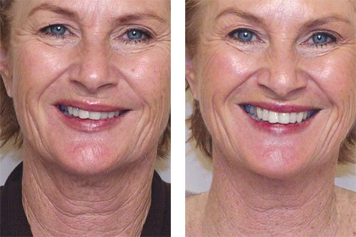 phoenix-facial-line-removal