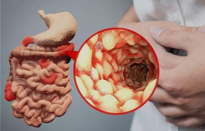 علاج عسر الهضم والقولون Serving Bowls Bowl Tableware