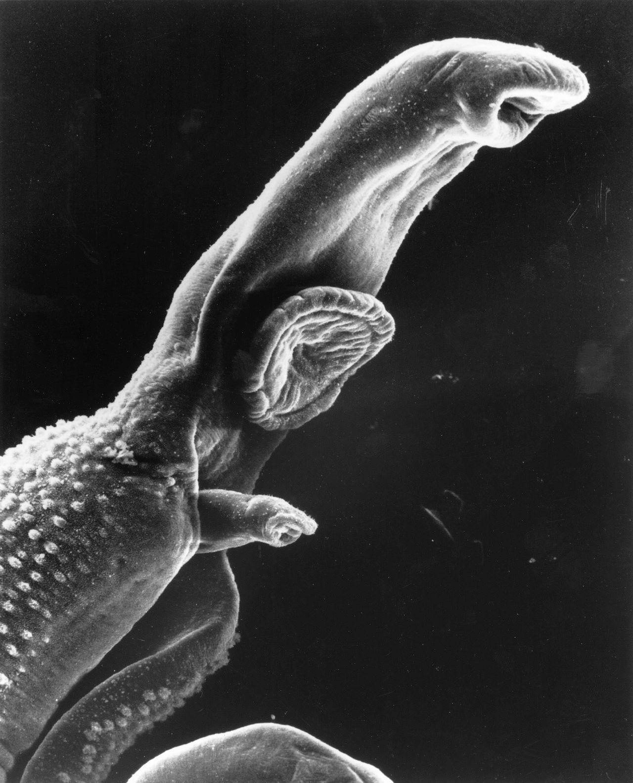 Élhetnek pinworms ek, Pinworms - mi ezek a férgek? Pinworms a fülekben