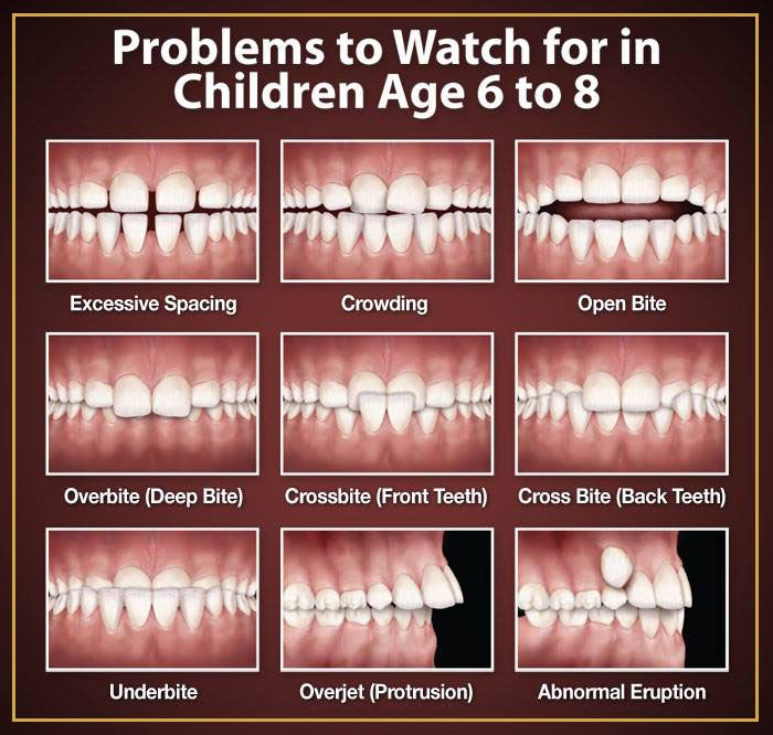 Children Usually Start Losing Their Baby Teeth From Around Six Years Of Age From 6 12 Years Children Have A Mixtur Dental Pediatric Dentistry Dental Problems