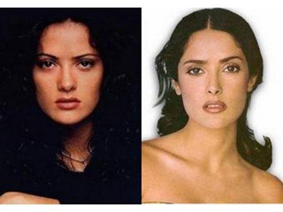 Hot Topics Botox Tests Winehouse More Celebrity Plastic Surgery Nose Job Plastic Surgery