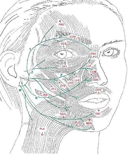Bells palsy facial retraining