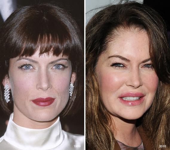 Lara Flynn Boyle Plastic Surgery Before And After Lara