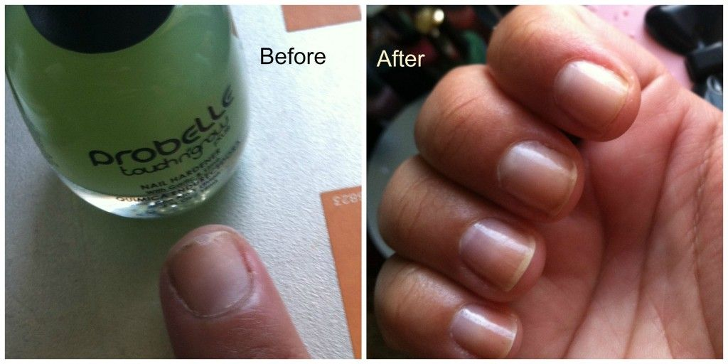 Probelle Nail Polish Before and After - this set of two polishes really helps strengthen nails.