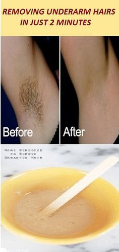 Removing Underarm Hairs In Just 2 Minutes Underarm Hair Natural Hair Styles How To Remove