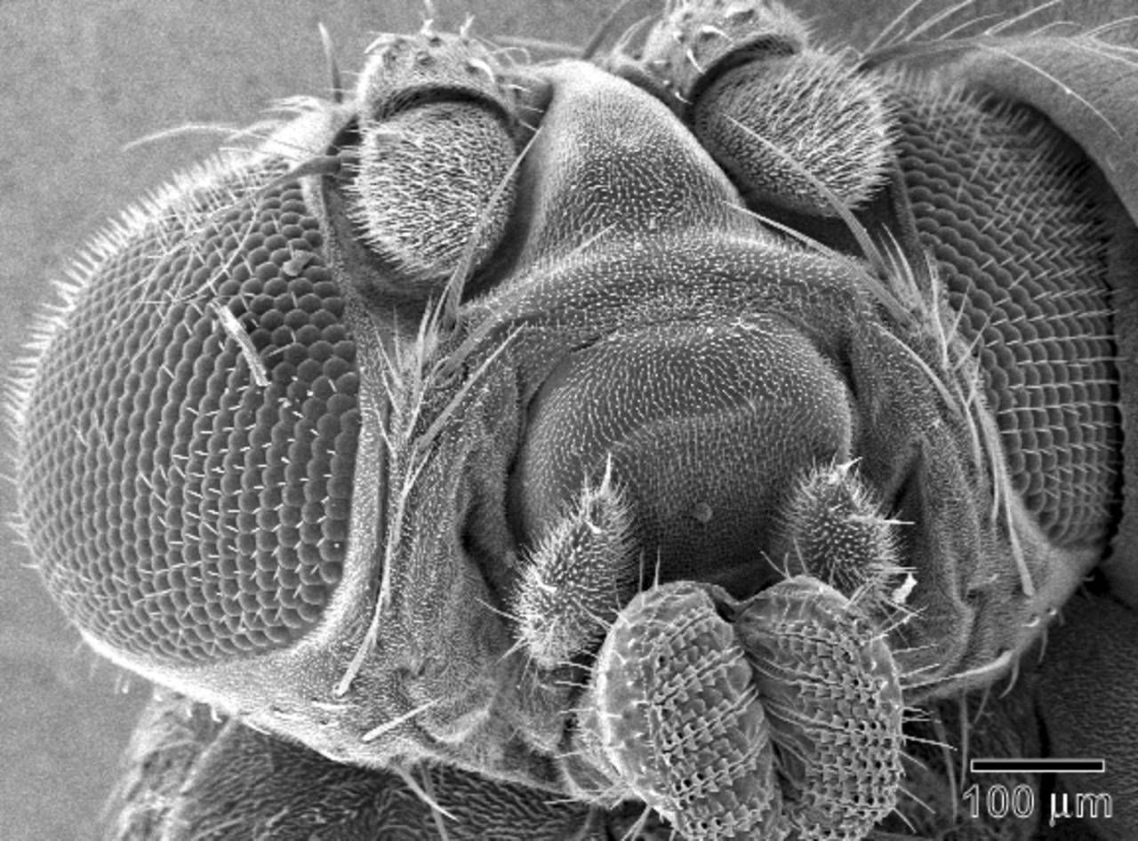scanning electron microscope sem micrograph showing granules of