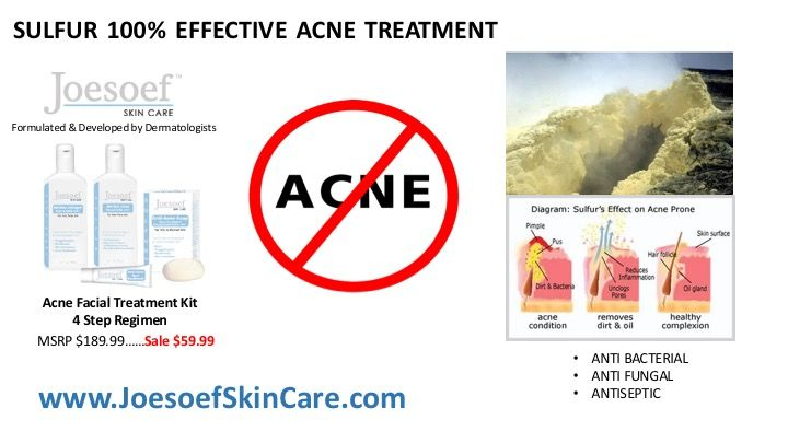 Pin By Joesoef Skin Care On Acne Remedies Sulfur Acne Treatment Effective Acne Treatment Acne