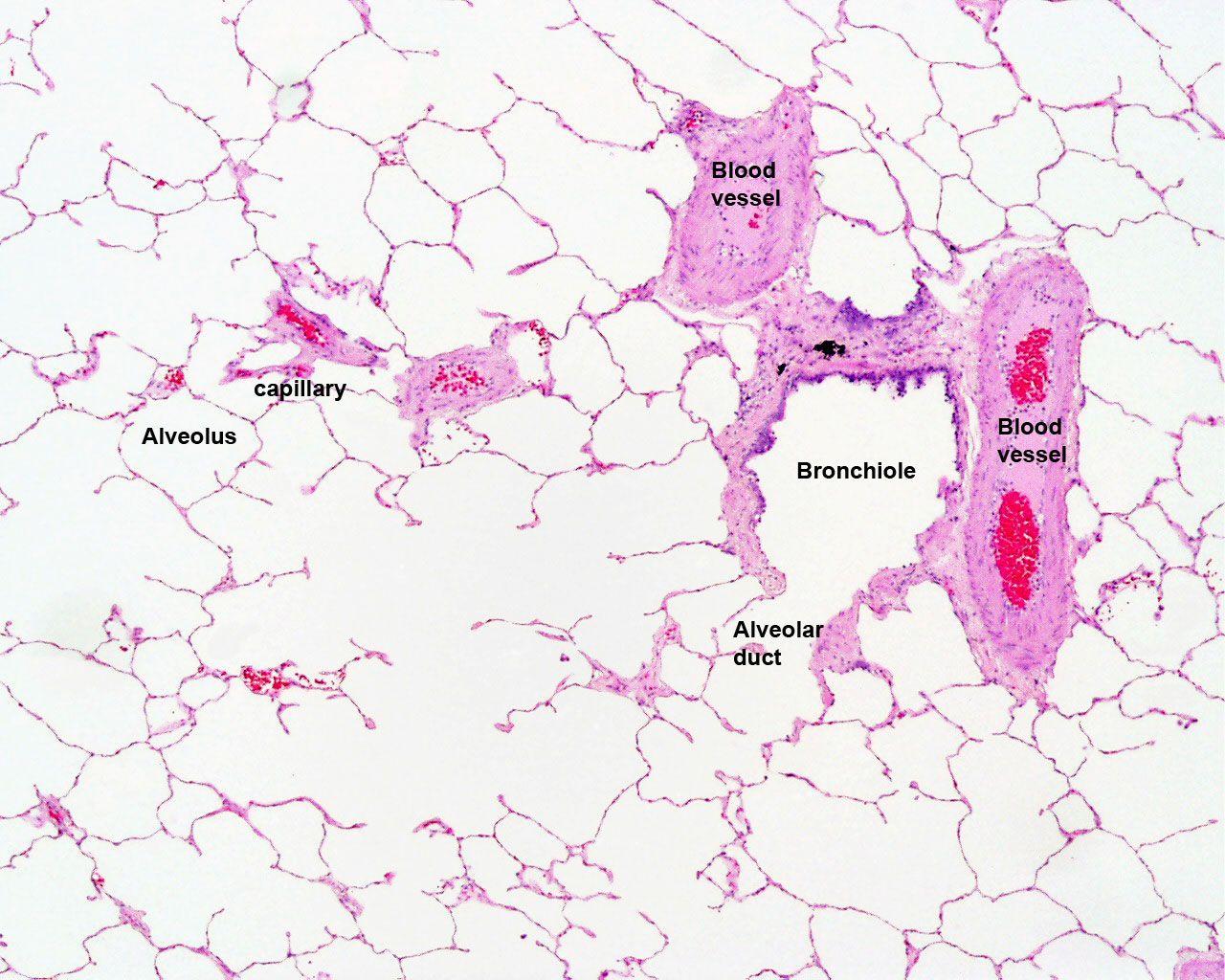 lung histology labeled - bronchiole, alveolar duct, alveoli | lab practical pics | Pinterest ...