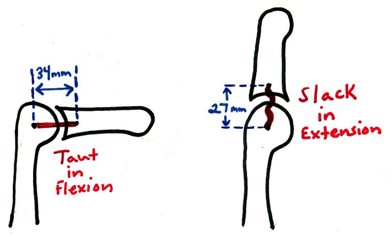pip ligaments - Google Search | SDP Anatomy | Pinterest