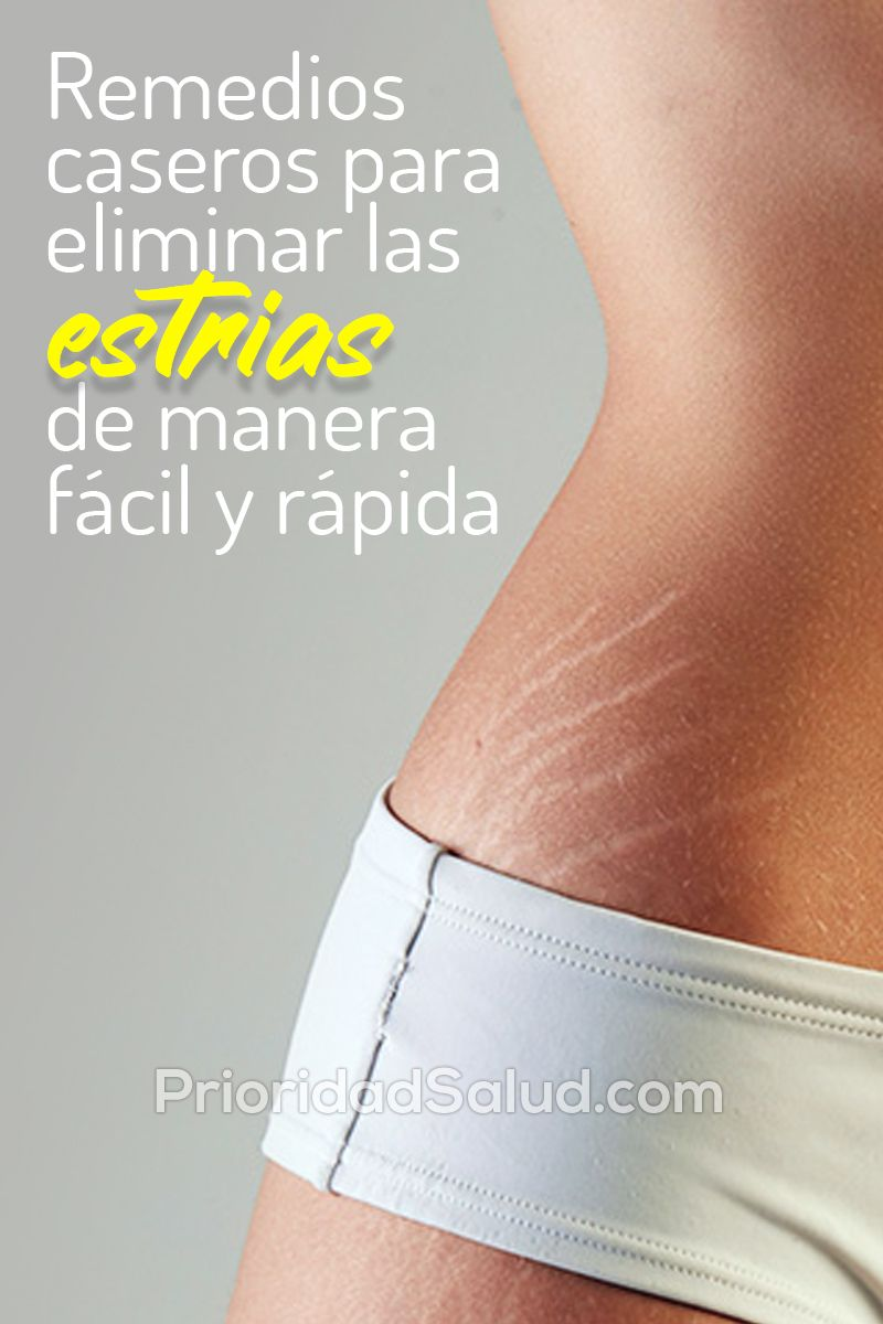 Ps17j Remedios Caseros Para Eliminar Las Estrias De Manera Facil Y Rapida Stretch Marks Beauty Facial Masks