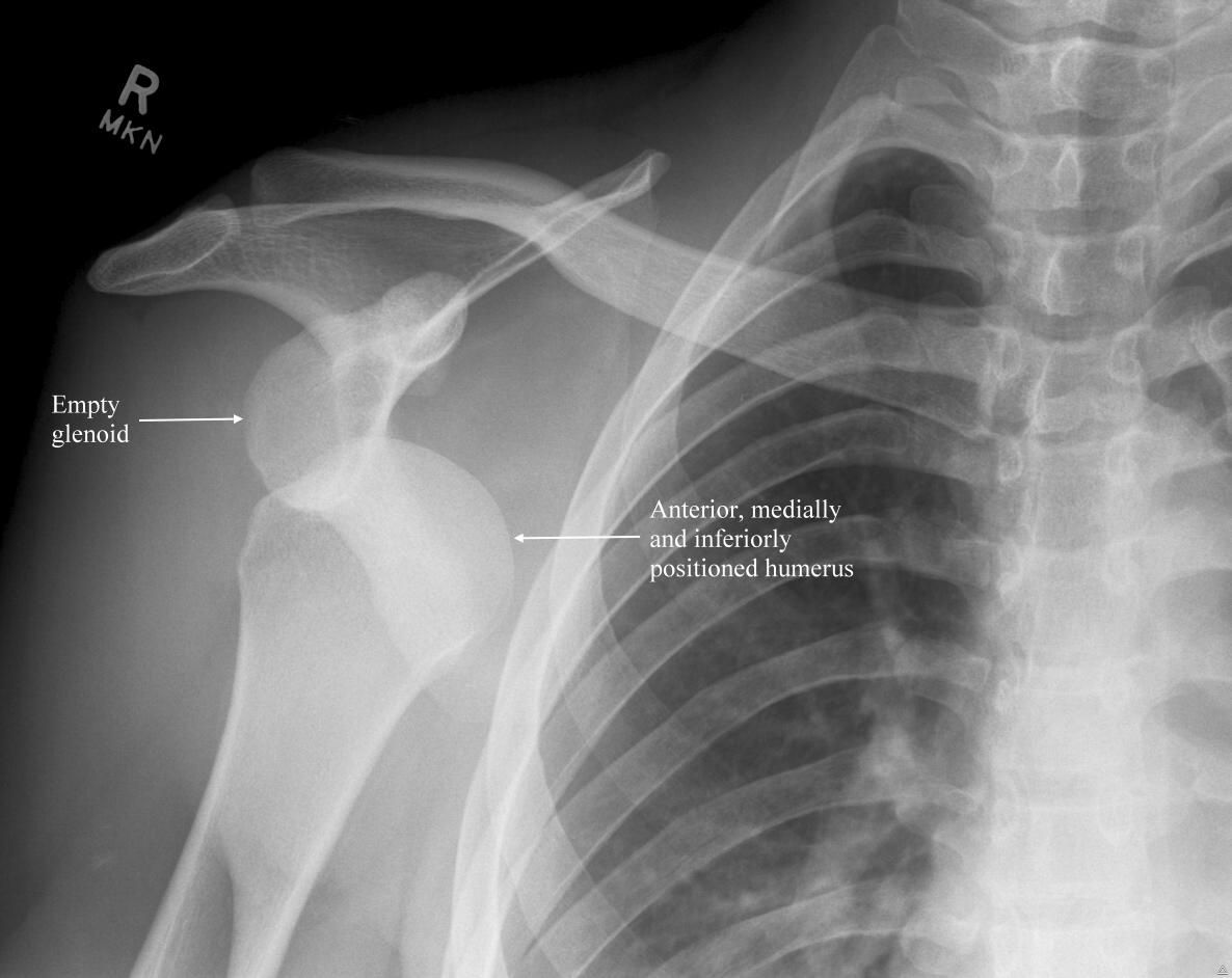 18+ dislocated right shoulder.
