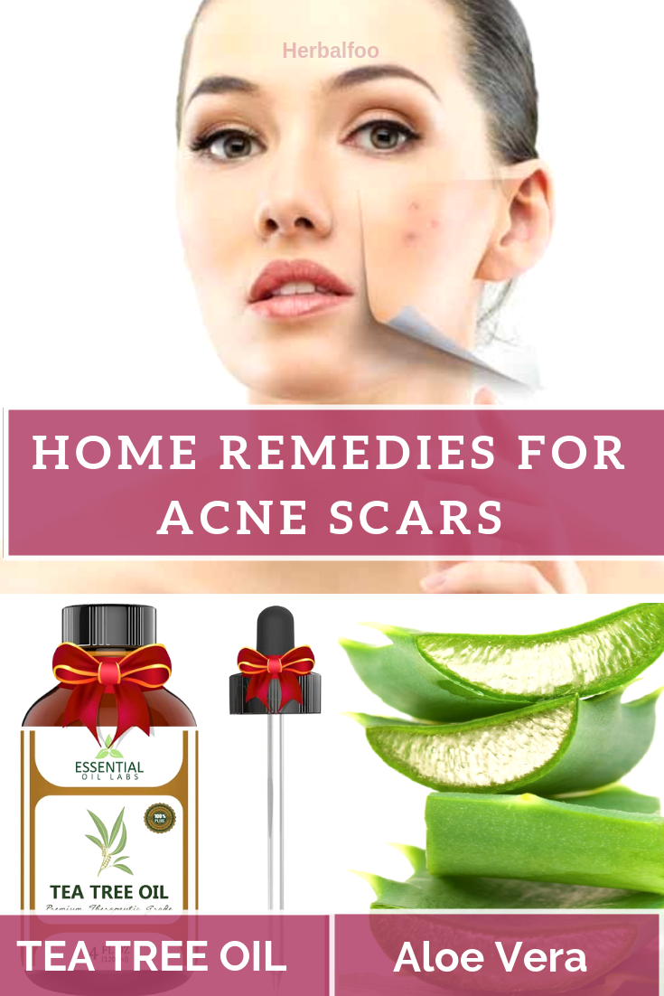 skin treatment at home