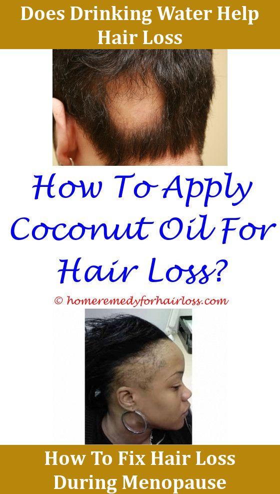 Hair Loss Xolair