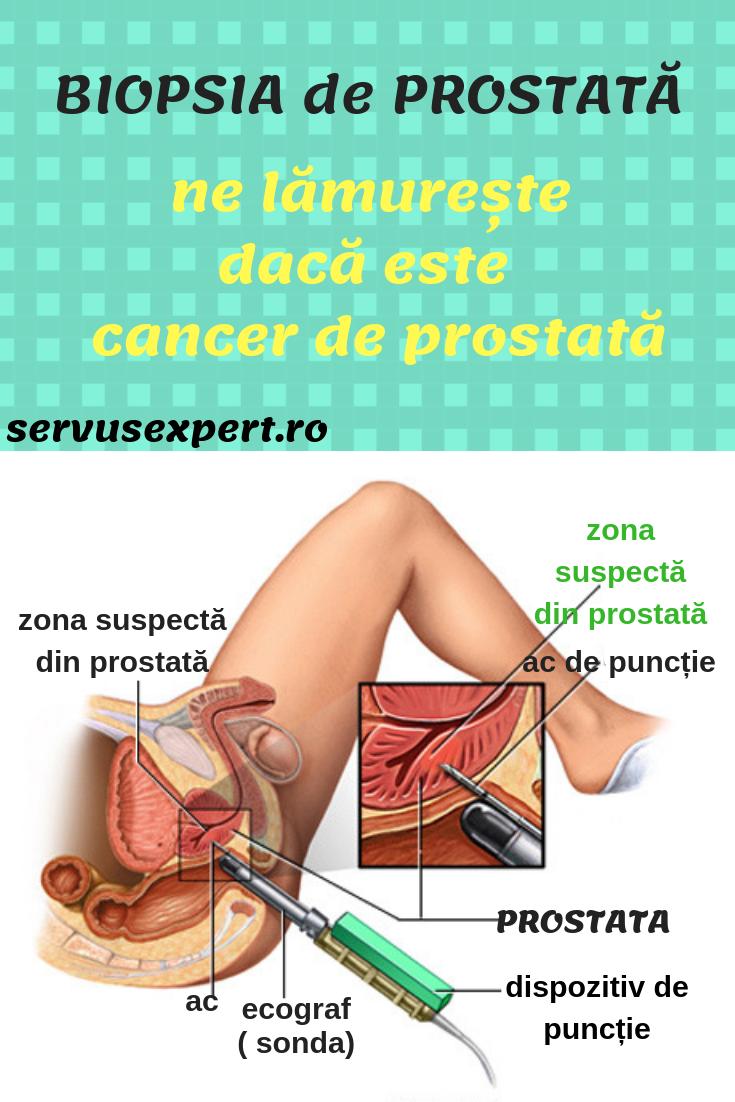 Varicoza submucoasa