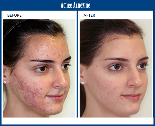 Pin Em Revitol Acnezine Acne Cream