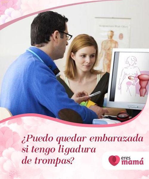 Trompas podes de embarazada con quedar ligadura