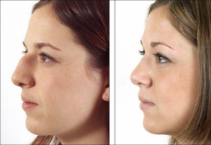 Nase plastische chirurgie nasenkorrektur plastische