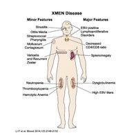 056e5208df50c3d33be9ac55f7afd5fa - How To Get Rid Of Chronic Epstein Barr Virus