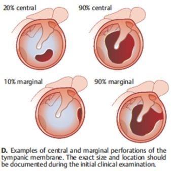 Perforated Tympanic Membrane – Causes, Symptoms, Diagnosis ...