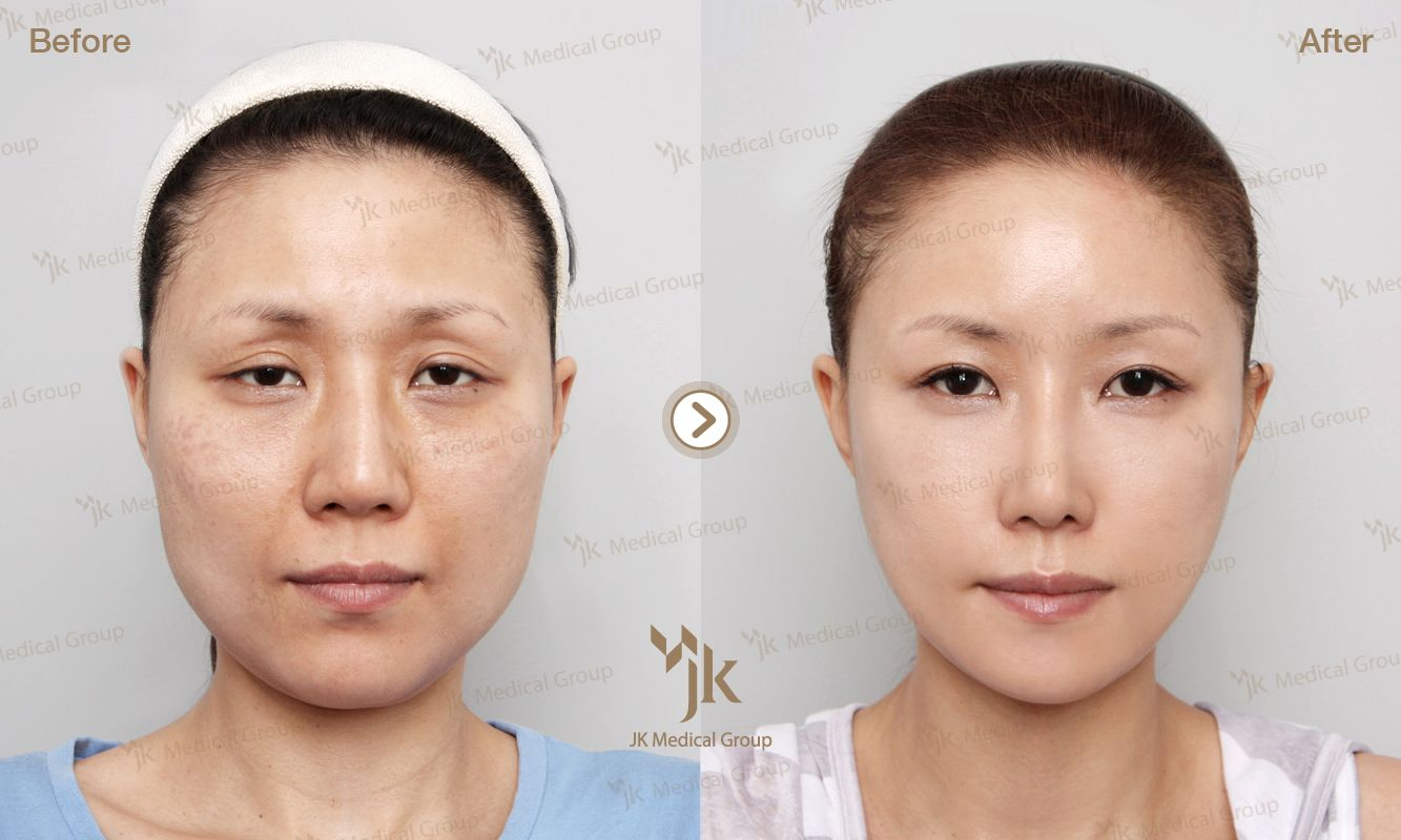 jk plastic surgery in south korea korean plastic surgery best