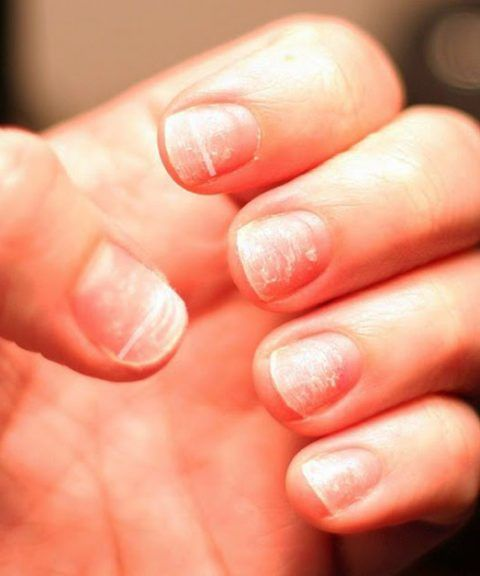 White Spots On Nails Aka Leukonychia Is Usually Harmless However In Some Cases May Point To S Remove Acrylic Nails Nails After Acrylics White Spots On Nails