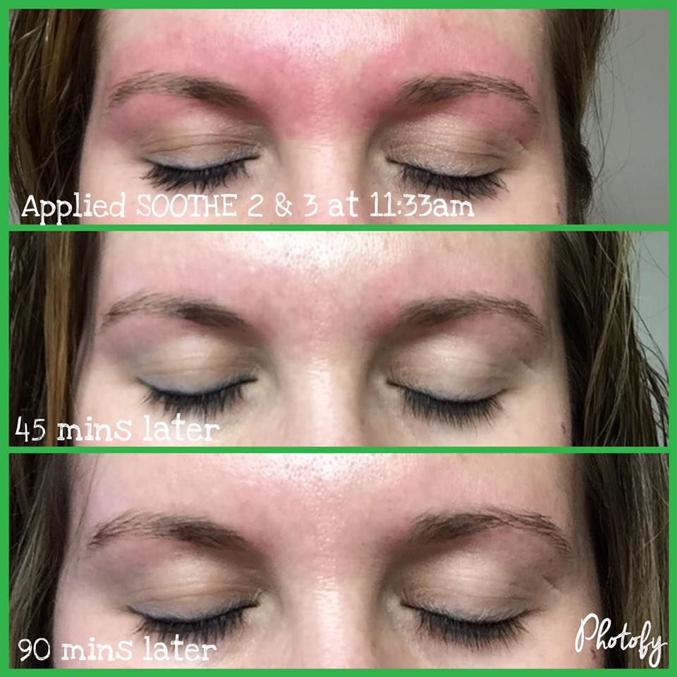 Does waxing leave your skin red and irritated? Soothe