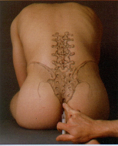 remedio natural para el dolor del coxis