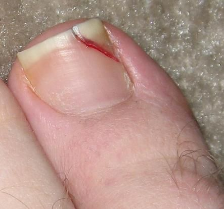 Treatment for a split toenail! | Ingrown toenails home remedies ...
