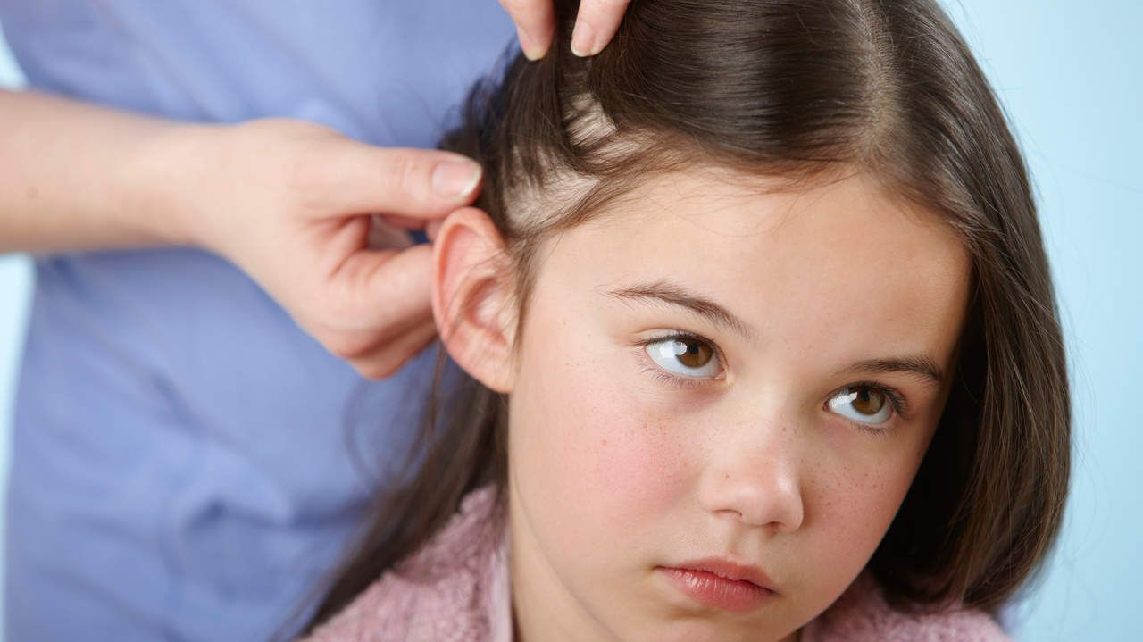 20 Ways to Kill Head Lice | About 6 to 12 million kids in the U.S. get head lice each year.