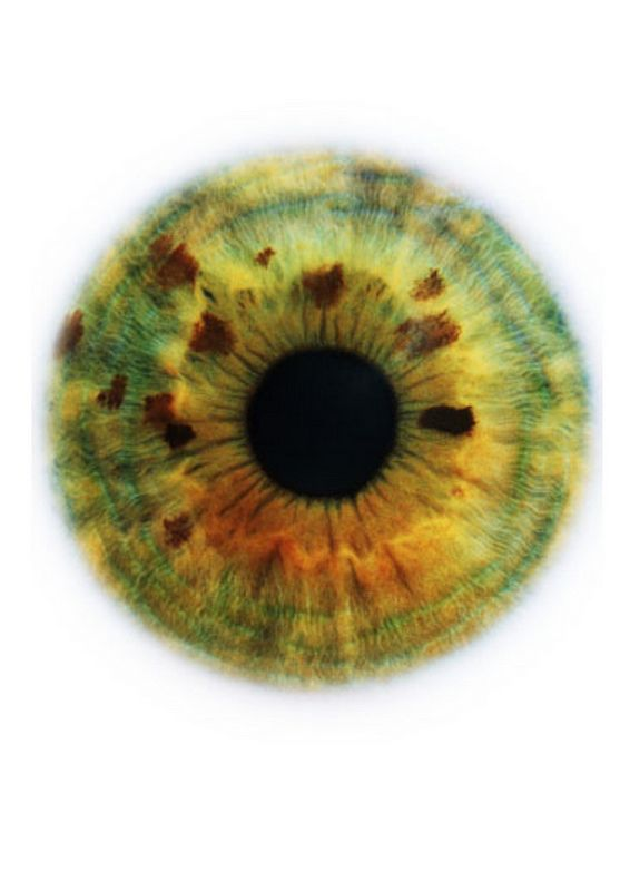 Blog de cursoiridologia : IRIDOLOGIA - CURSO DE IRIDOLOGIA A DISTÂNCIA, ESTUDOS DA ÍRIS – BILIAR COM PSÓRICA