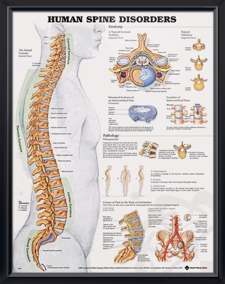 Human Spine Disorders Chart 20x26 | Pinterest - Fysiotherapie ...
