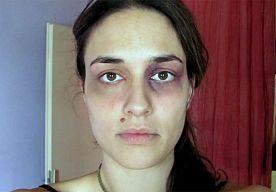 22-Mar-2013 9:45 - VROUW LEGT HUISELIJK GEWELD VAST MET ÉÉN FOTO PER DAG. Een Servisch filmpje met beelden van het gezicht van een jonge vrouw die wordt mishandeld, is een internethit geworden en meer dan een miljoen keer op YouTube bekeken.