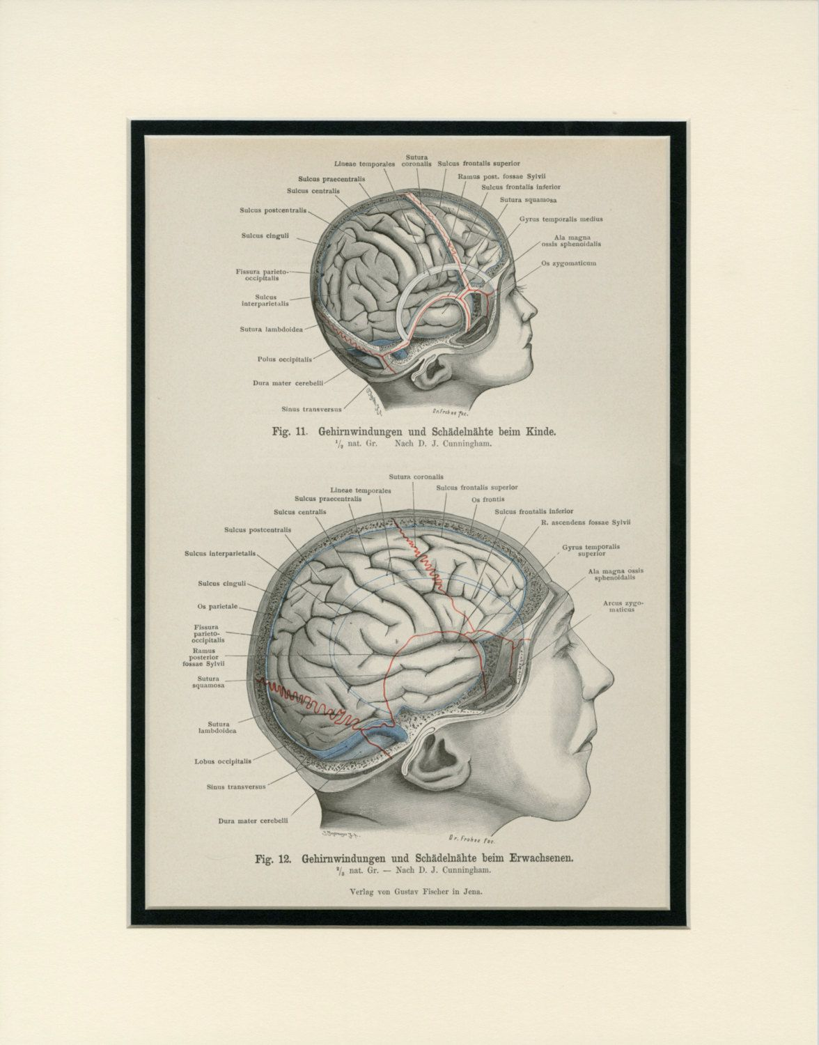 Adult brain and child brain diagram convolutions and skull seams c adult brain and child brain diagram convolutions and skull seams c1890 antique engraving matted 11x14 wall art home decor by antiqueprintboutique on ccuart Image collections