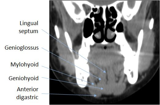 Floor Of Mouth Anatomy Radiology Coronal Google Search