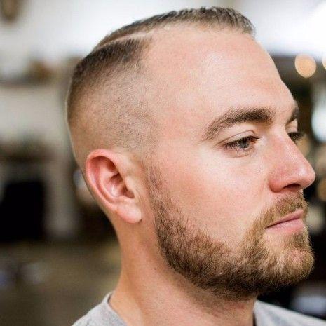 Kurz Fade Defined Teil Frisuren Für Haarausfall Männer A Haircuts
