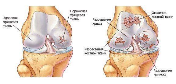 Болят и хрустят суставы суставной синдром при ра